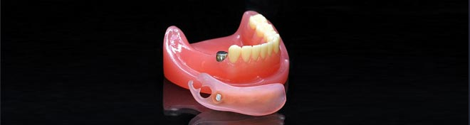 最新式入れ歯