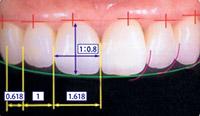 相対的歯冠長イメージ