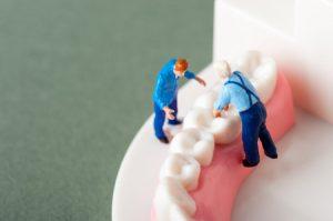 45197613 - model of the teeth