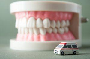 45199988 - model of the teeth