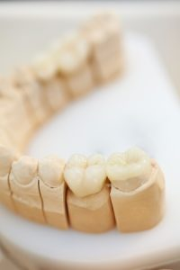 5835563 - ceramic teeth inlays in a dental lab
