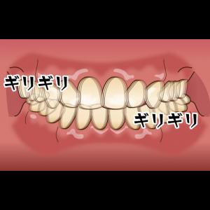 症候群 クレンチング 日中、無意識に歯を食いしばってない?クレンチング症候群ってどんなん??