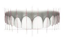 白い歯イラスト