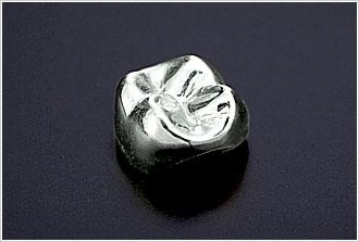 金銀パラジウムクラウン